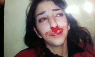 მოკლული საბინა ბერდიევა. ეს ფოტო მარტში წაიღო პოლიციაში საბინას მამამ იმის დასამტკიცებლად, რომ ქმარი სცემდა. 31 ოქტომბერს კი ქმარმა მოკლა. ფოტო: news1.az