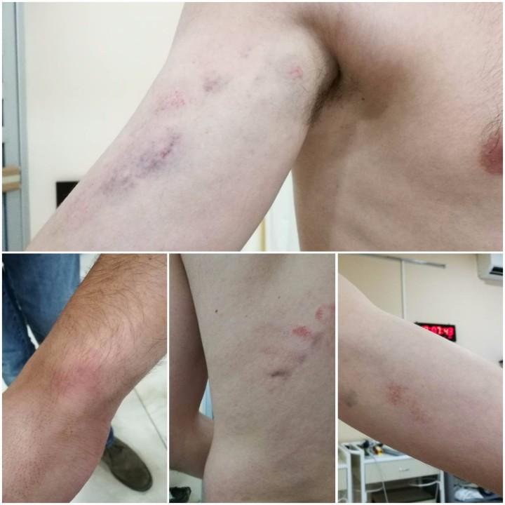 ალექსანდრე ლელაშვილის განცხადებით, ეს ფოტოები დაკავებისას მიღებულ დაზიანებებს ასახავს