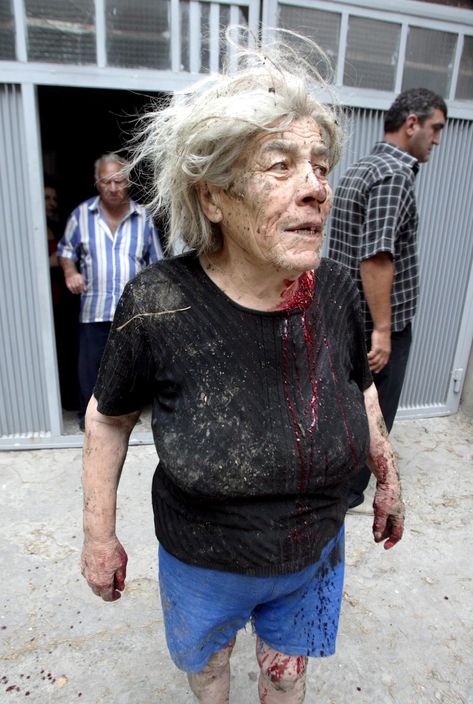 გორის დაბომბვის შედეგად დაჭრილი ქალი © EPA/ZURAB KURTSIKIDZE