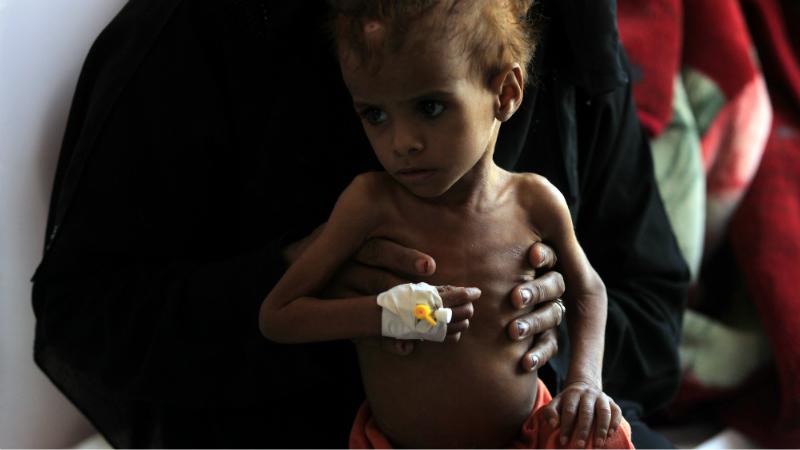 მალნუტრიციით დაავადებული ბავშვი სანაას ერთ–ერთ საავადმყოფოში. ფოტო: EPA/მალნუტრიციით დაავადებული ბავშვი სანაას ერთ–ერთ საავადმყოფოში. ფოტო: EPA/მალნუტრიციით დაავადებული ბავშვი სანაას ერთ–ერთ საავადმყოფოში. ფოტო: EPA/YAHYA ARHAB