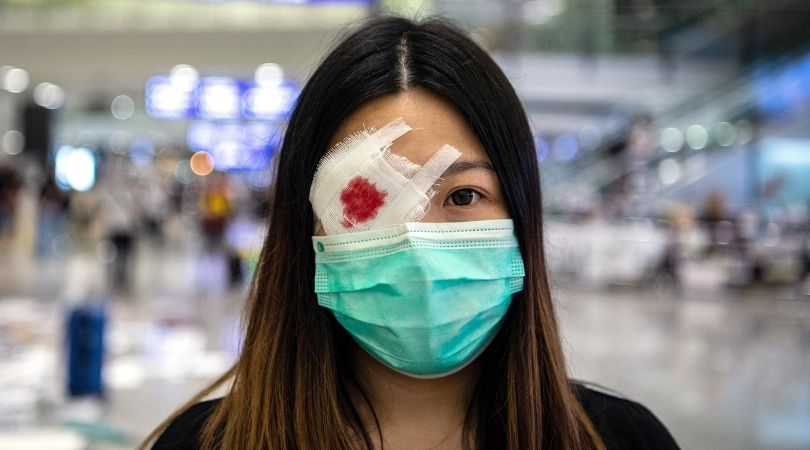 თვალახვეული დემონსტრანტი ჰონგ კონგის აეროპორტში. ფოტო: EPA/LAUREL CHOR