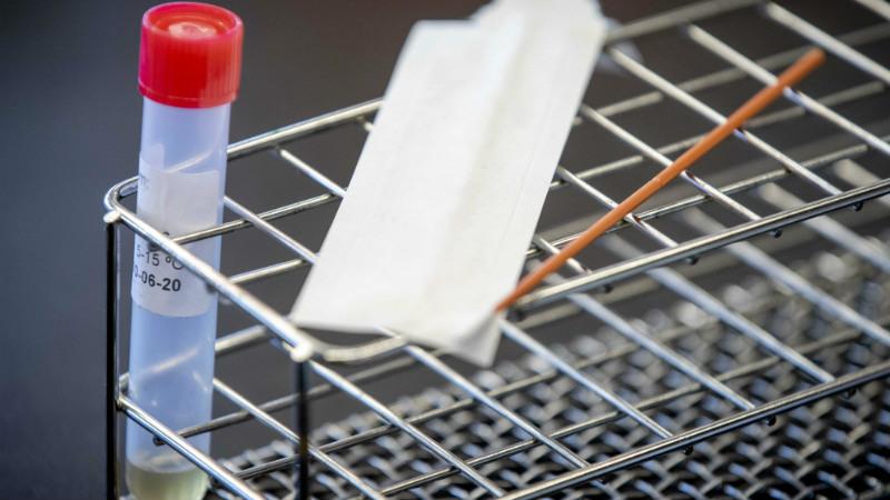 В США выявлен первый случай заражения новым штаммом коронавируса
