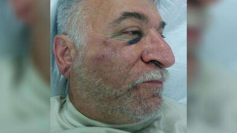 В Цхинвали избит активист Тимур Цхурбати