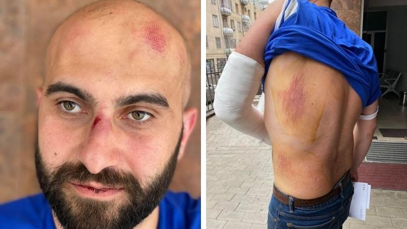 Молодой человек обвиняет сотрудников бара в вымогательстве и расправе