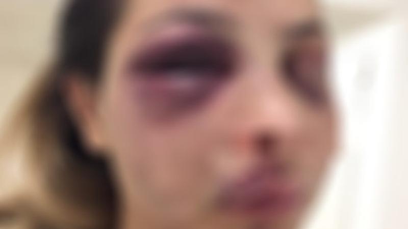 «Сапари»: полиция отказалась выдать запретительный ордер против мужчины применяющим насилие в отношении бывшей супруги