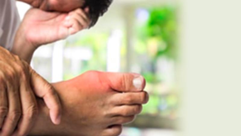 რა არის პოდაგრა? – 6 რამ, რაც ამ დაავადების შესახებ უნდა იცოდეთ