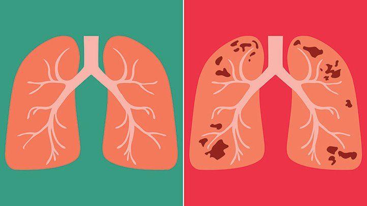 Проблемы в лечении и профилактике туберкулеза — отчет Службы аудита