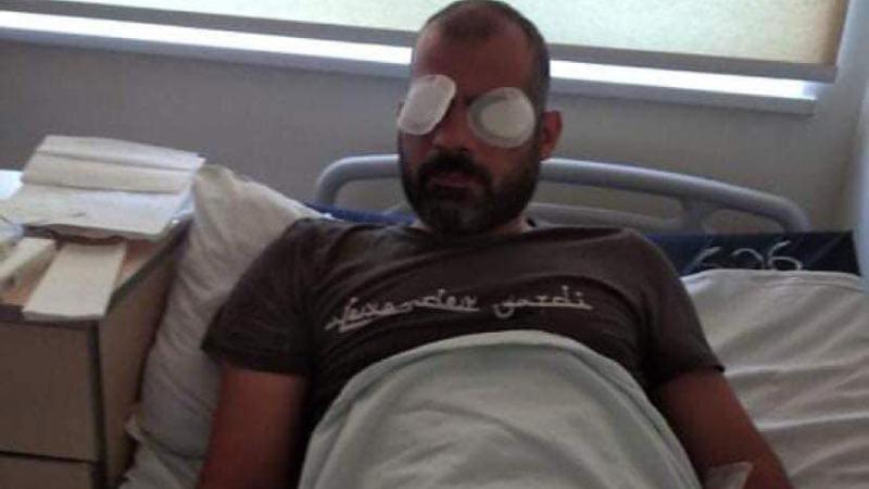 საზოგადოებრივი მაუწყებლის ოპერატორს 5 ივლისს თვალები დაუზიანეს