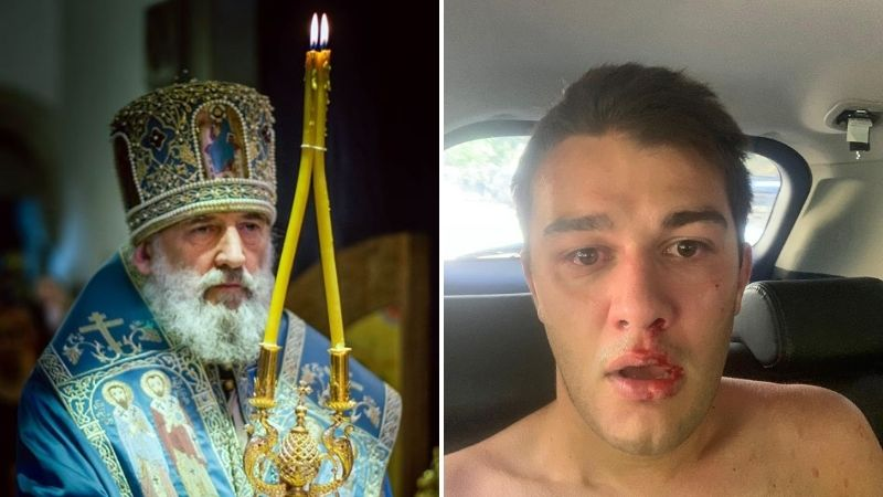 Грузинский митрополит заявил, что избитый журналист не заслуживал помощи