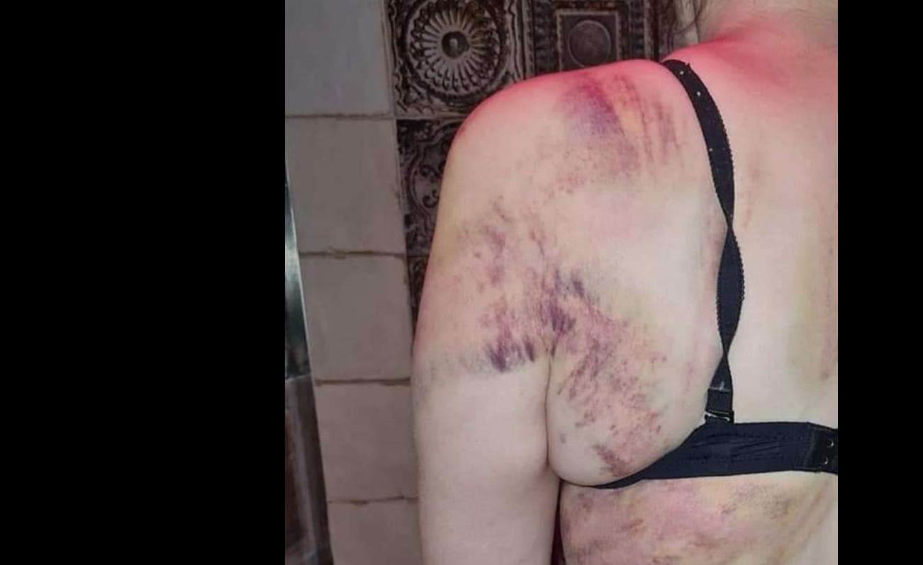ქალთა მკვლელობების გასაპროტესტებლად გამოსული ფემინისტები ბაქოს პოლიციამ სცემა